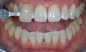 blanchiment dentaire cabinet dentaire au havre dr ionut. Black Bedroom Furniture Sets. Home Design Ideas