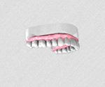 Remplacer une dent