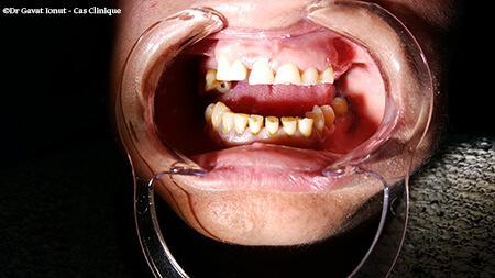 Couronnes métalo-céramique - Esthétique dentaire