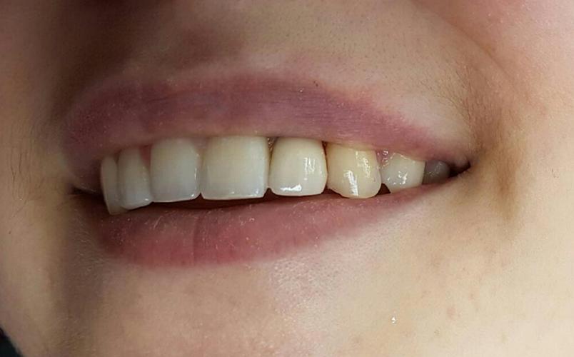 Pose de l'implant - Après