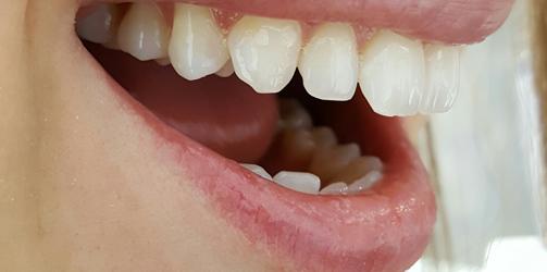 Blanchiment dentaire - Après